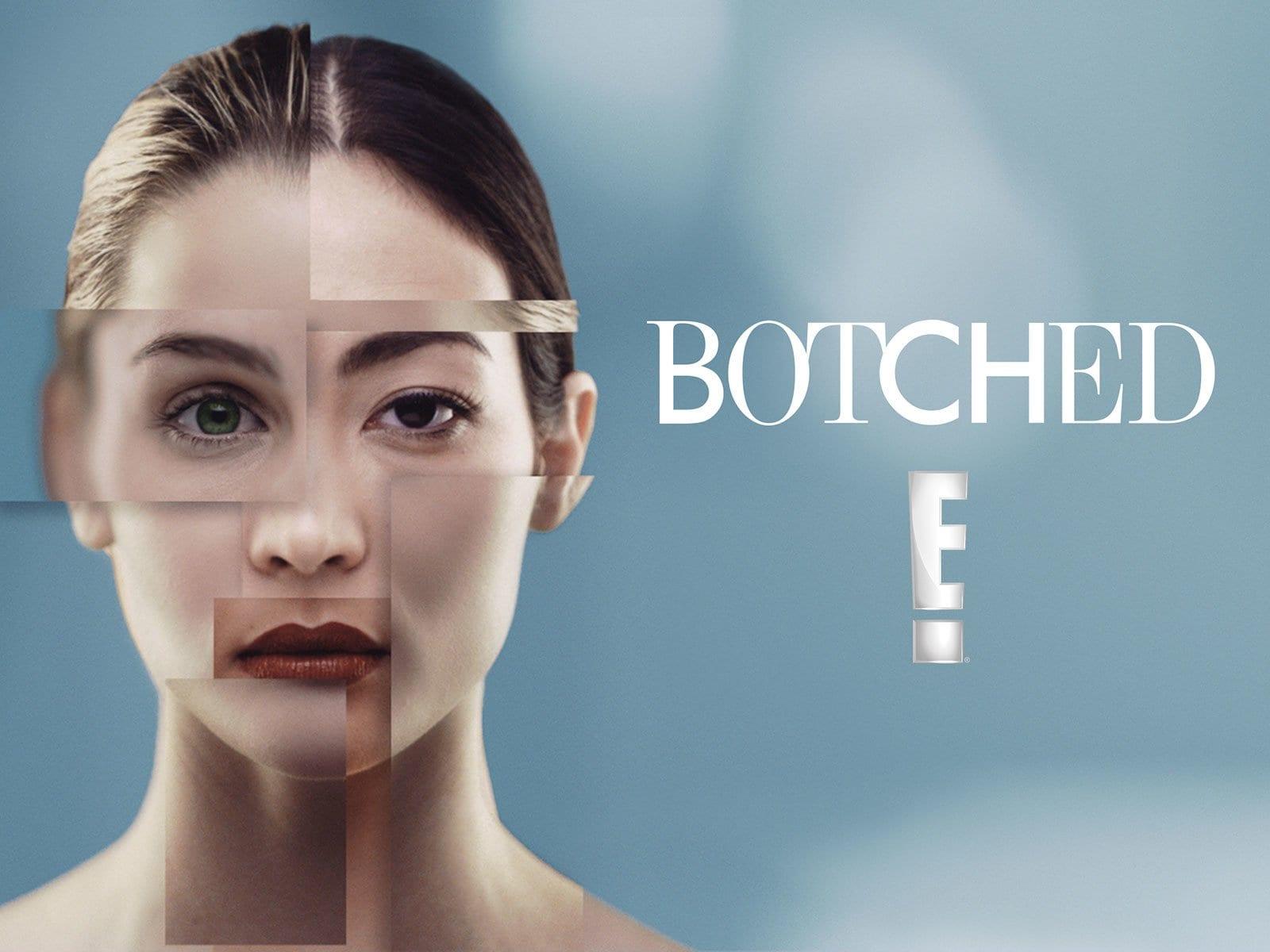 Botched season 7